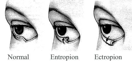 Ectropion versus entropion.